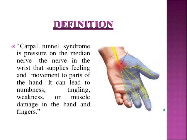 carpal tunnel syndrome thesis
