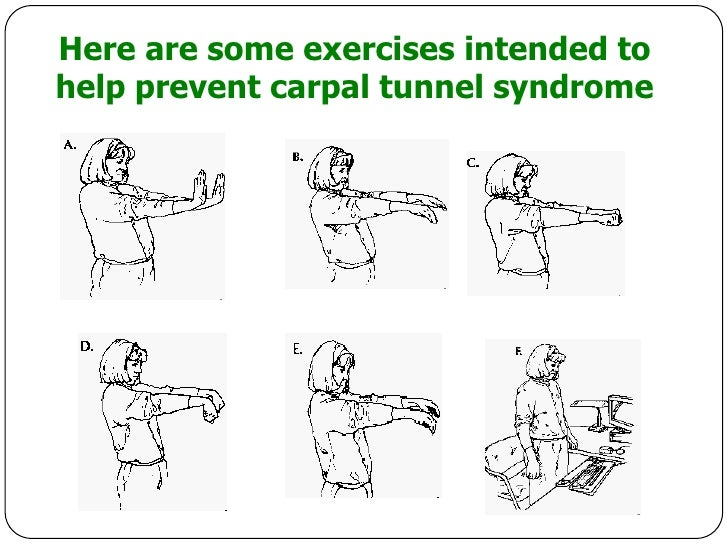 carpal tunnel syndrome 2 essay If you're feeling numbness, tingling, or weakness in your hand, consider asking your doctor to check you for carpal tunnel syndrome it's caused by pressure on your median nerve, which runs the .