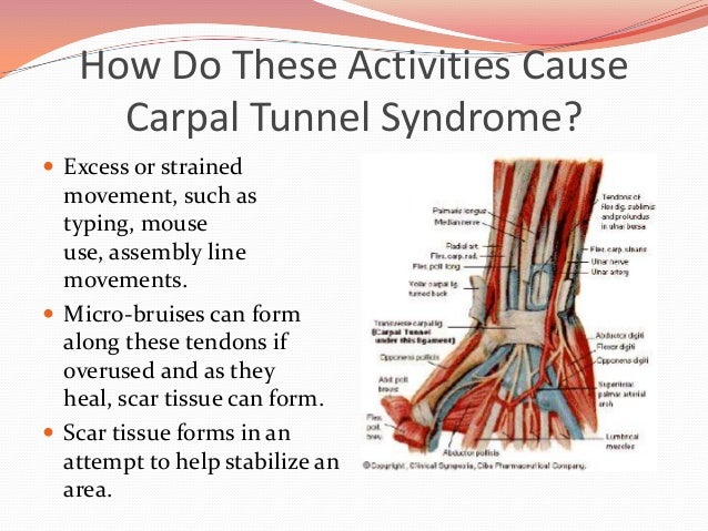 Home remedies for carpal tunnel syndrome • Top 20 Home ...