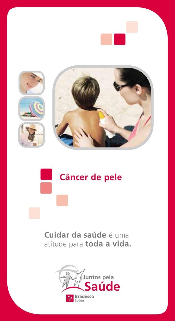 Câncer de peleCuidar da saúde é umaatitude para toda a vida.