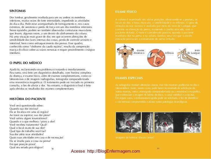 SINTOMAS                                                                    EXAME FÍSICODor lombar, geralmente irradiada p...