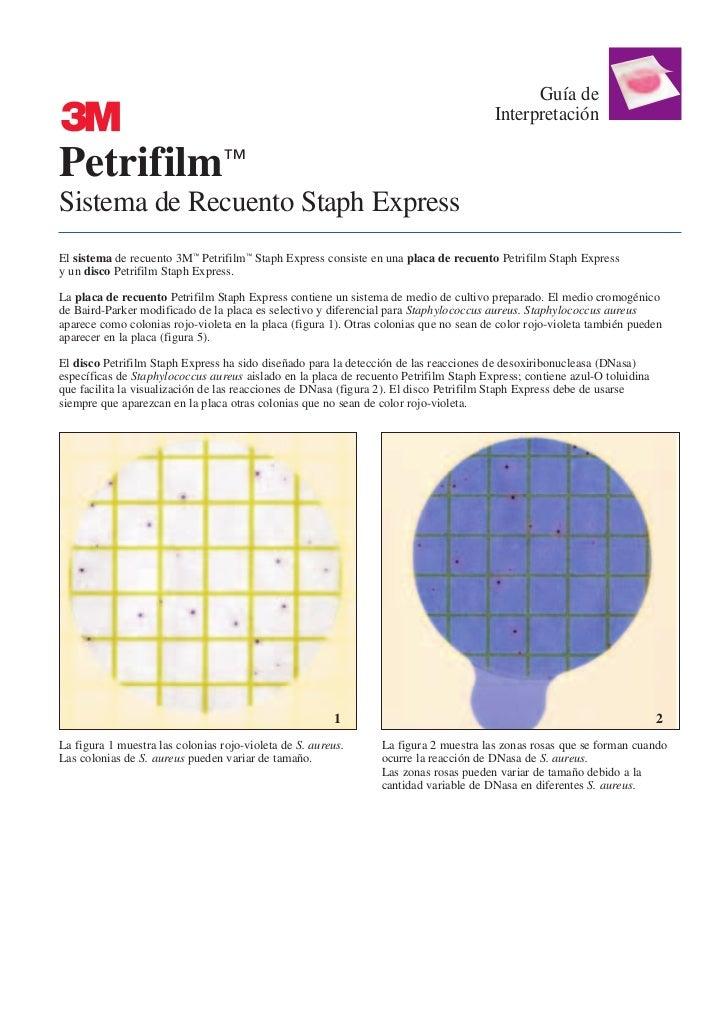 Guía de                                                                                        InterpretaciónPetrifilm™Sis...