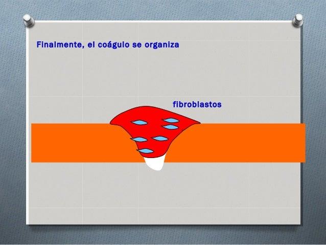 Finalmente, el coágulo se organiza                                Colágeno