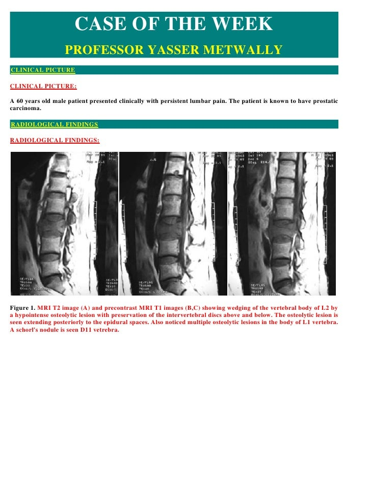 CASE OF THE WEEK                    PROFESSOR YASSER METWALLY CLINICAL PICTURE  CLINICAL PICTURE:  A 60 years old male pat...