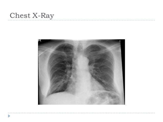 right middle lobe syndrome Slide 3