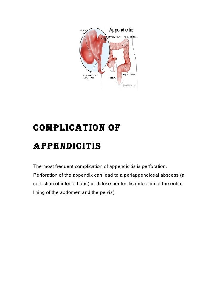 Nursing case study appendectomy 12 complication ofappendicitisthe most frequent complication of fandeluxe Gallery