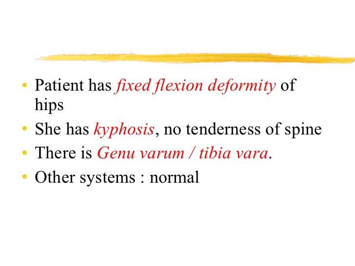 <ul><li>Patient has  fixed flexion deformity  of  hips </li></ul><ul><li>She has  kyphosis , no tenderness of spine </li><...