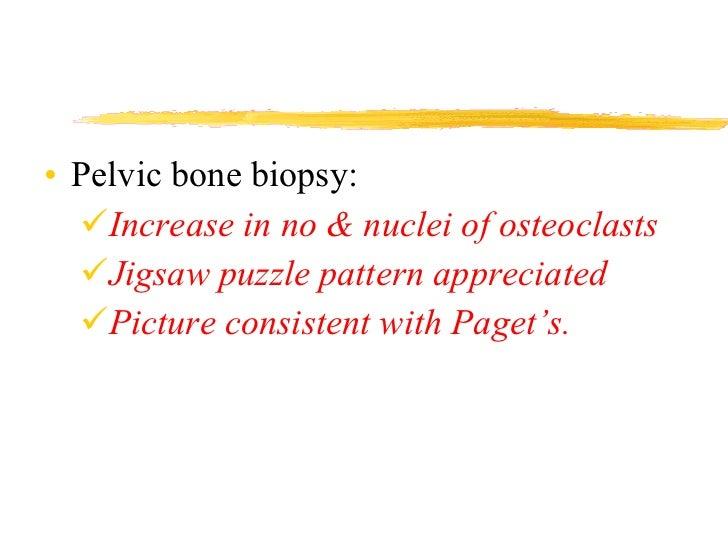 <ul><li>Pelvic bone biopsy: </li></ul><ul><ul><li>Increase in no & nuclei of osteoclasts </li></ul></ul><ul><ul><li>Jigsaw...