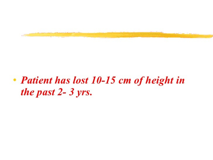 <ul><li>Patient has lost 10-15 cm of height in the past 2- 3 yrs. </li></ul>