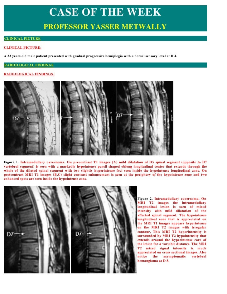 CASE OF THE WEEK                          PROFESSOR YASSER METWALLY CLINICAL PICTURE  CLINICAL PICTURE:  A 33 years old ma...