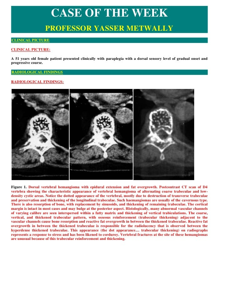 CASE OF THE WEEK                     PROFESSOR YASSER METWALLY CLINICAL PICTURE  CLINICAL PICTURE:  A 51 years old female ...
