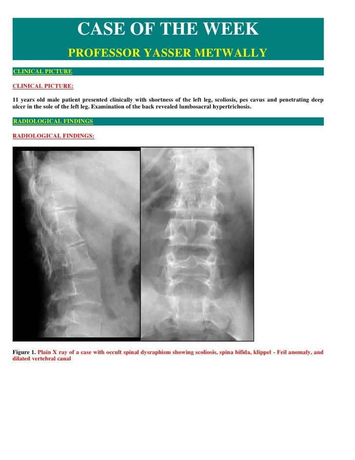 CASE OF THE WEEK                      PROFESSOR YASSER METWALLY CLINICAL PICTURE  CLINICAL PICTURE:  11 years old male pat...