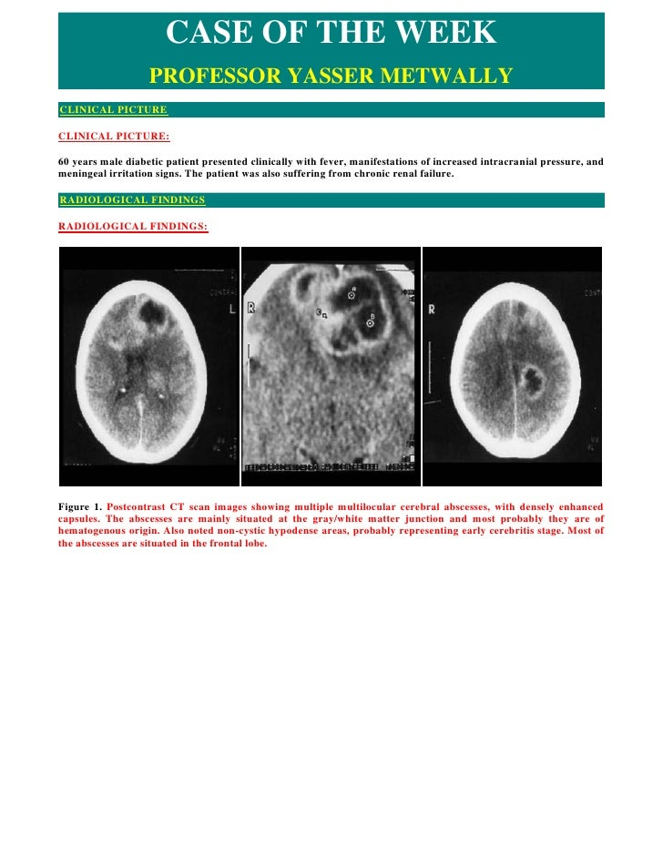 CASE OF THE WEEK                    PROFESSOR YASSER METWALLY CLINICAL PICTURE  CLINICAL PICTURE:  60 years male diabetic ...