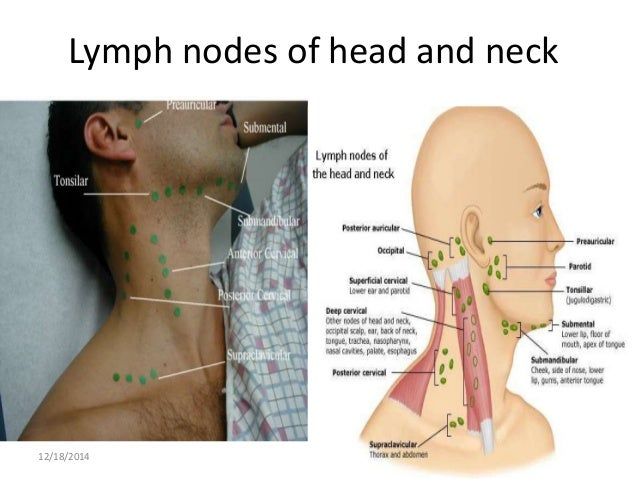 Image Result For Sternocleidomastoid Pain Lymph Nodes