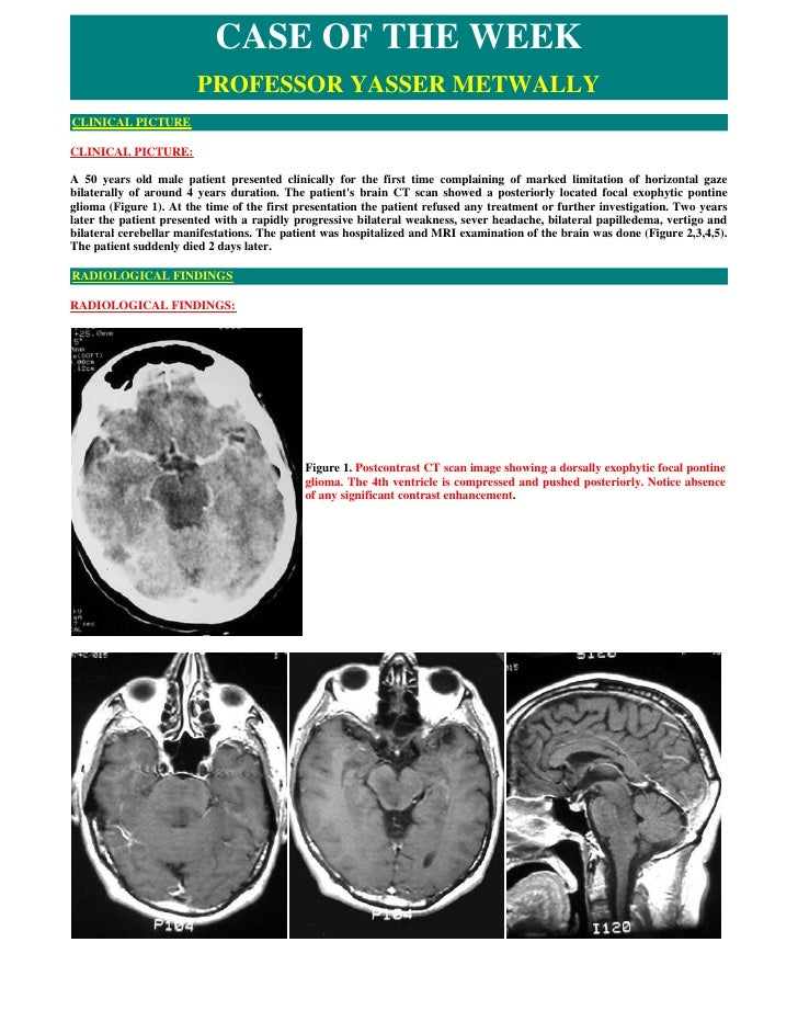 CASE OF THE WEEK                         PROFESSOR YASSER METWALLY CLINICAL PICTURE  CLINICAL PICTURE:  A 50 years old mal...