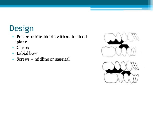 Design • Posterior bite-blocks with an inclined plane • Clasps • Labial bow • Screws – midline or saggital