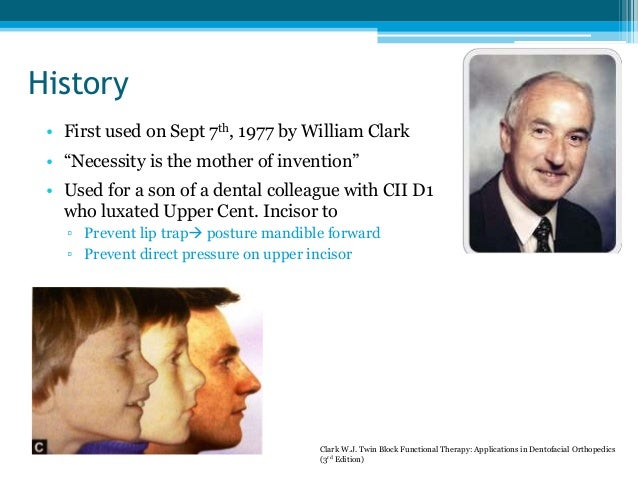 """History • First used on Sept 7th, 1977 by William Clark • """"Necessity is the mother of invention"""" • Used for a son of a den..."""