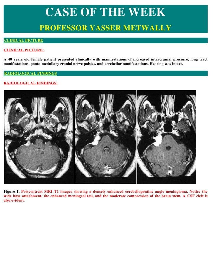 Case record   Cerebellopontine angle meningioma