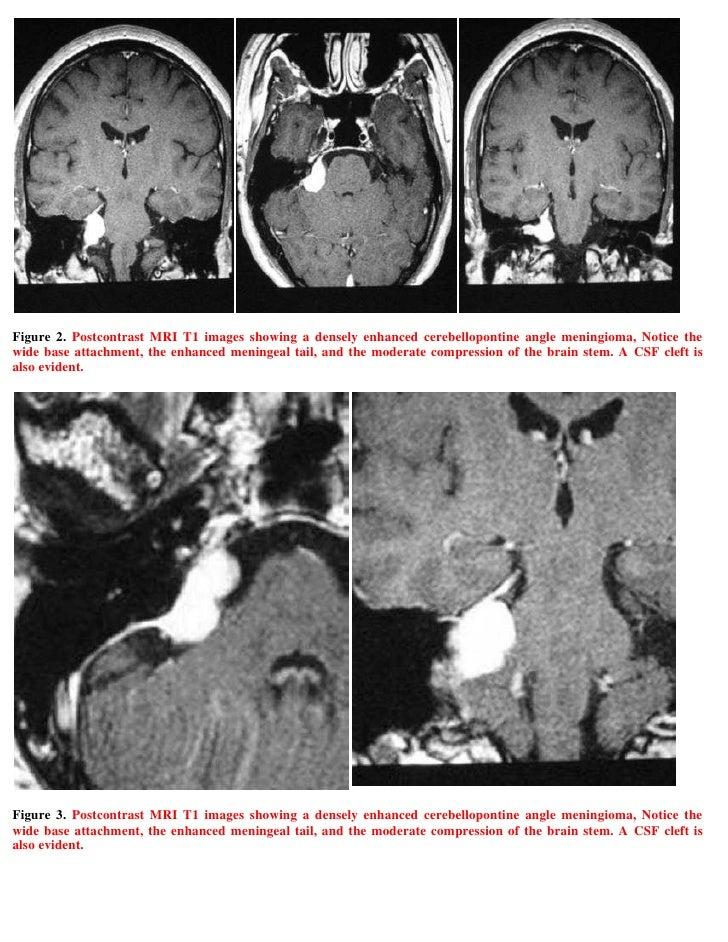 Case record...Cerebellopontine angle meningioma