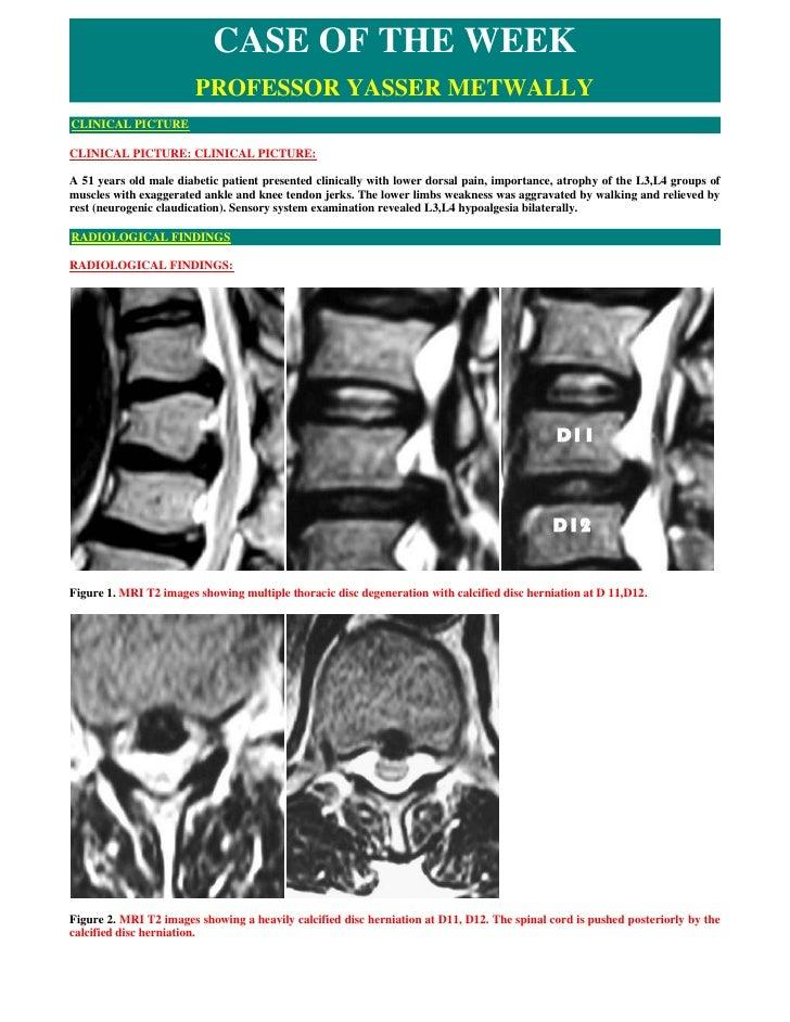 CASE OF THE WEEK                         PROFESSOR YASSER METWALLY CLINICAL PICTURE  CLINICAL PICTURE: CLINICAL PICTURE:  ...