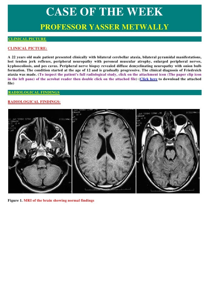 CASE OF THE WEEK                    PROFESSOR YASSER METWALLY CLINICAL PICTURE  CLINICAL PICTURE:  A 22 years old male pat...