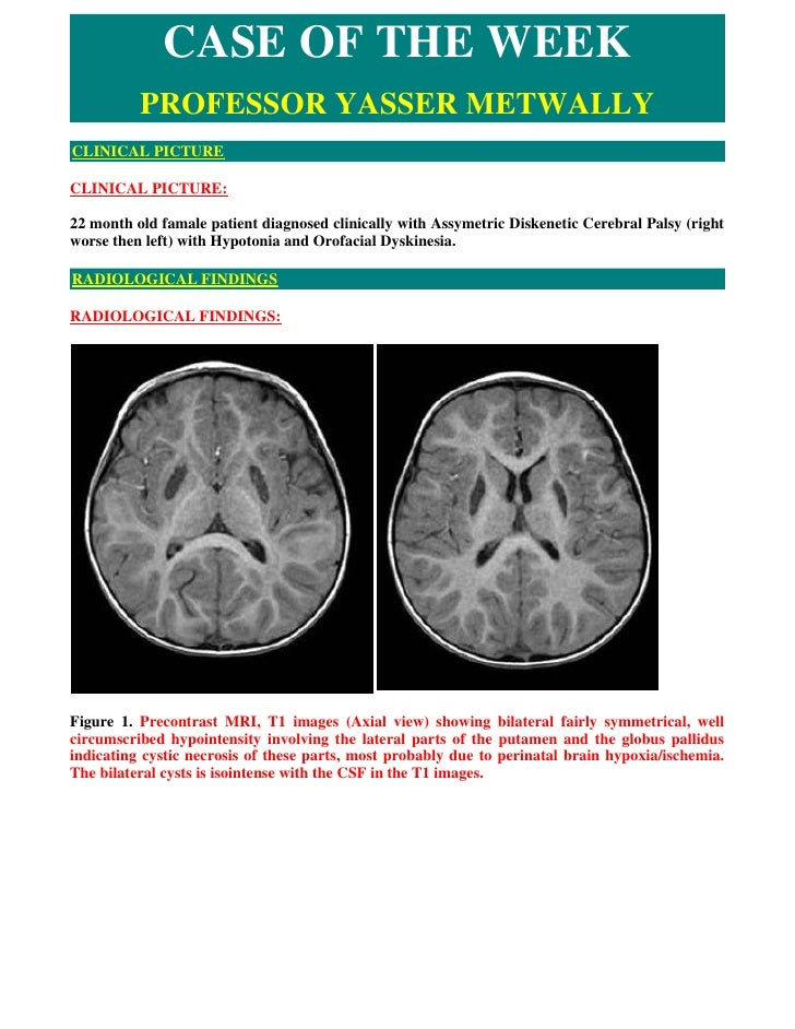 CASE OF THE WEEK           PROFESSOR YASSER METWALLY CLINICAL PICTURE  CLINICAL PICTURE:  22 month old famale patient diag...