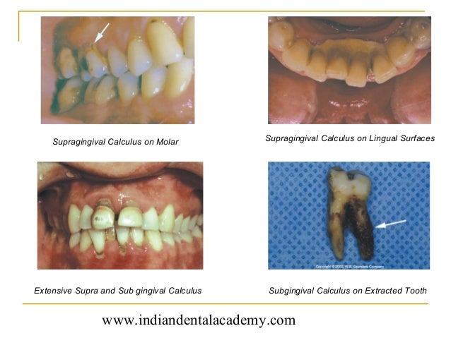 case history amp diagnosis in periodontics certified fixed