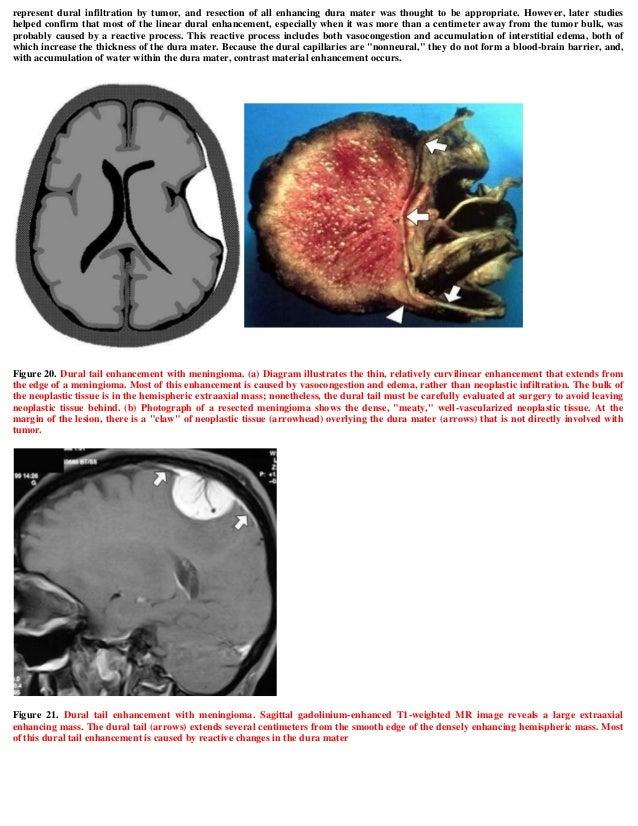 Case record...Parasagittal meningioma
