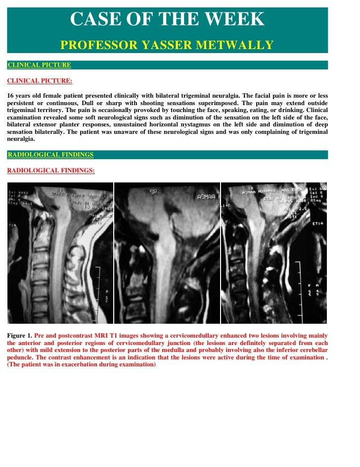 CASE OF THE WEEK                    PROFESSOR YASSER METWALLY CLINICAL PICTURE  CLINICAL PICTURE:  16 years old female pat...