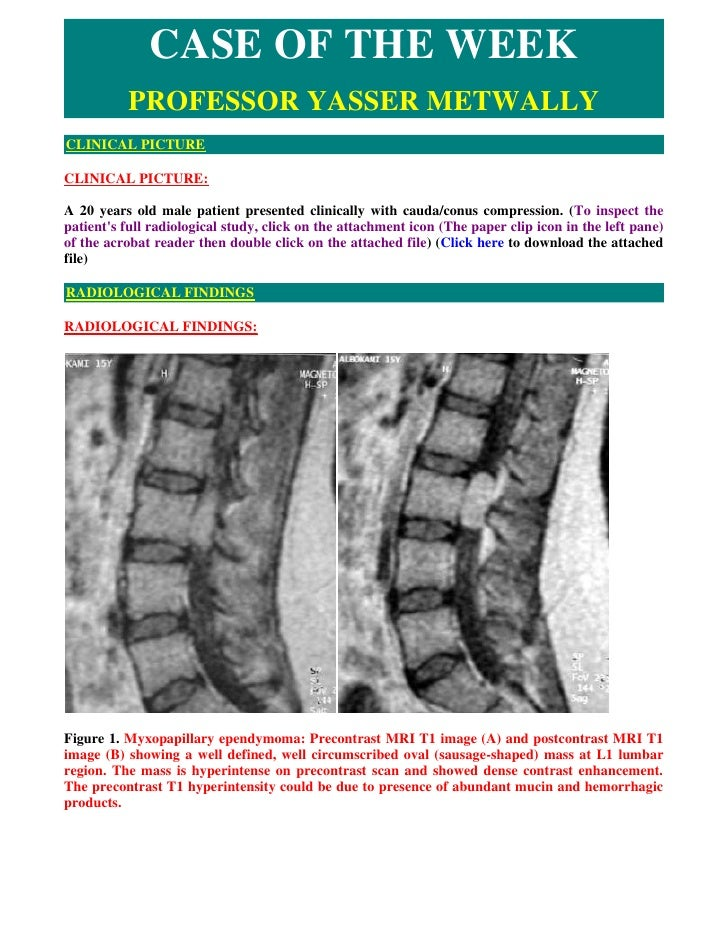 CASE OF THE WEEK           PROFESSOR YASSER METWALLY CLINICAL PICTURE  CLINICAL PICTURE:  A 20 years old male patient pres...