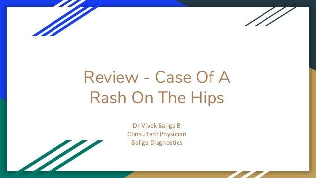 Review - Case Of A Rash On The Hips Dr Vivek Baliga B Consultant Physician Baliga Diagnostics