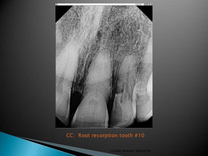CC: Root resorption tooth #10                LIZANO IMPLANT DENTISTRY