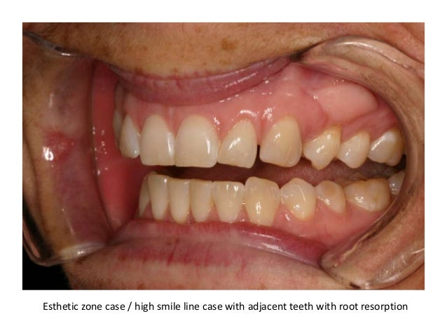 Esthetic zone case / high smile line case with adjacent teeth with root resorption