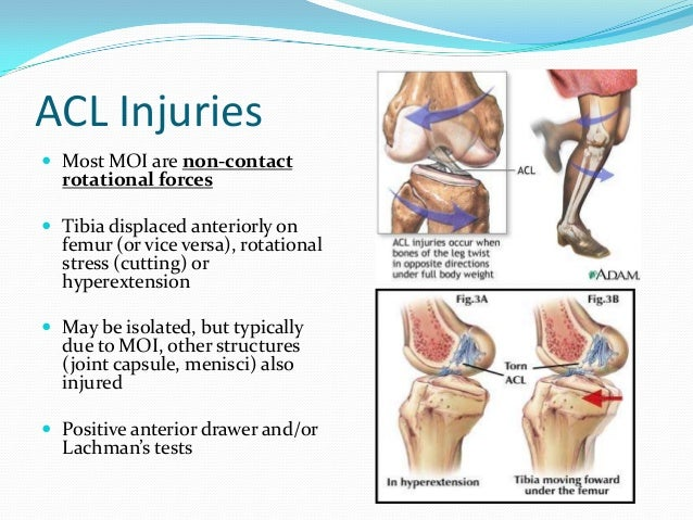 Special Tests: ACL Sensitivity Specificity Lachman test 85%[1] 94%[