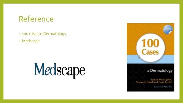 Reference • 100 cases in Dermatology. • Medscape