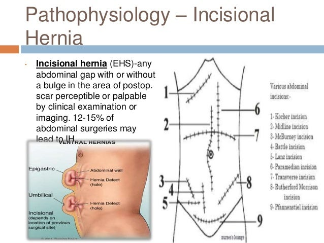 incarcerated hernia