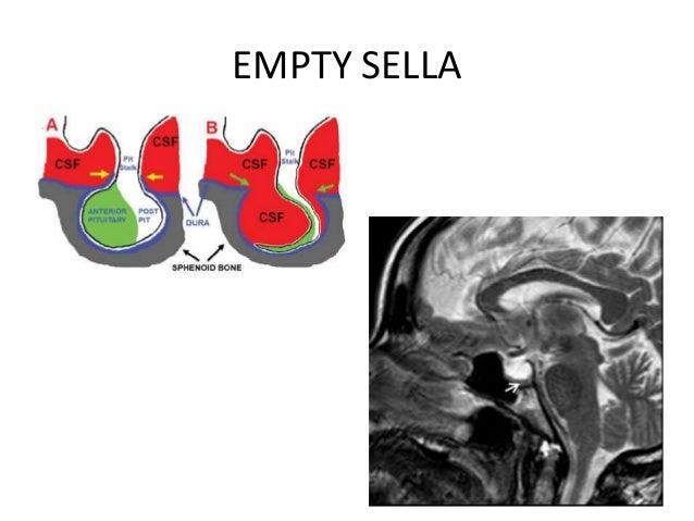Empty Sella