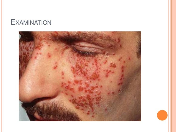 Case Presentation Eczema Herpeticum
