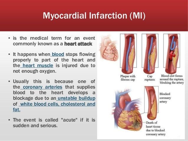 infarction images