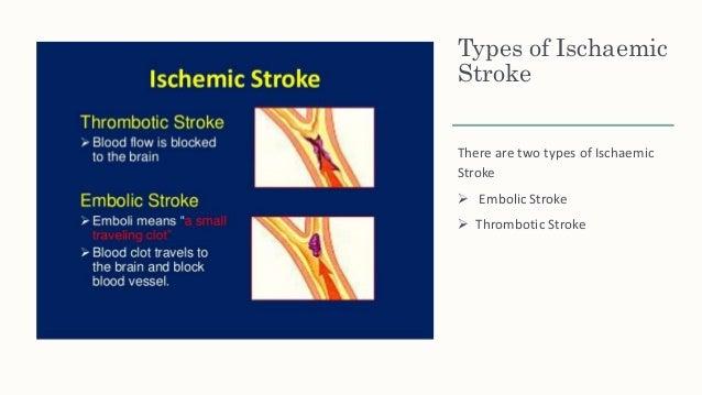 ischemic stroke case studies