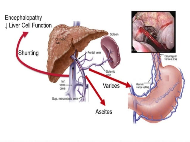 CASE PRESENTATION ON CIRRHOSIS OF LIVER WITH PORTAL HYPERTENSION, HE…