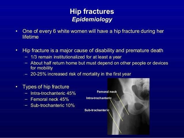 osteoporosis lawsuit investigation marissa
