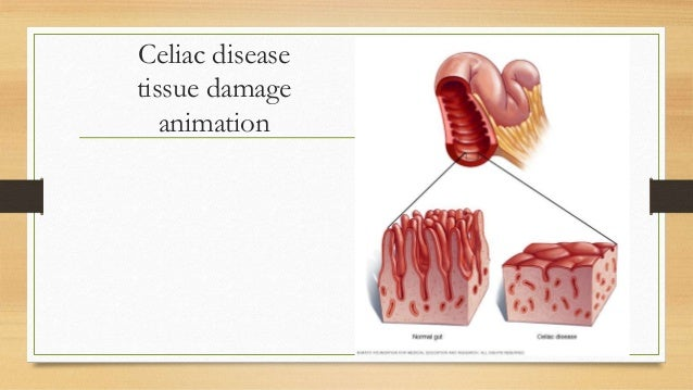 Case study: Celiac disease