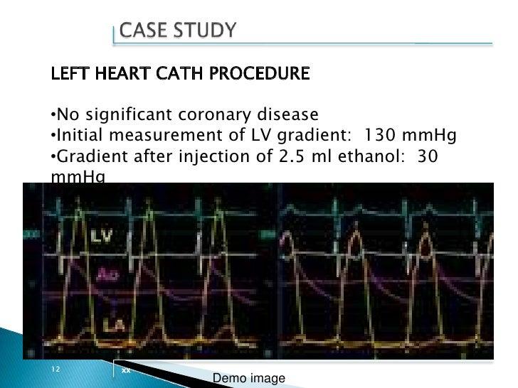 Sudden cardiac arrest in takotsubo cardiomyopathy – a case ...