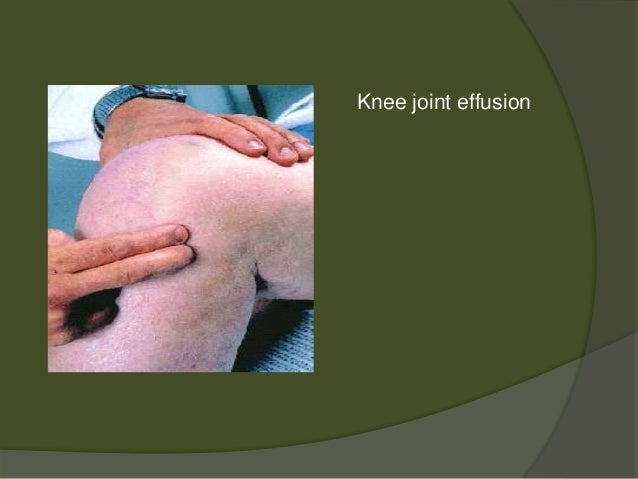 case study osteoarthritis with a total Global burden of osteoarthritis in the year 2000 case and sequelae table 31 prevalence studies for knee osteoarthritis region study population ref.