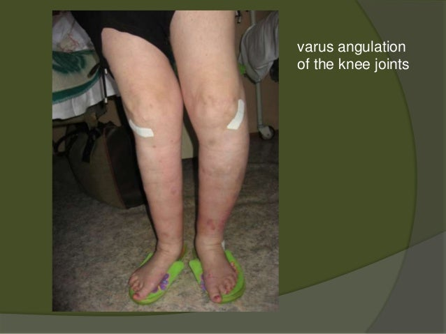 Osteoarthritis and Cartilage Home Page