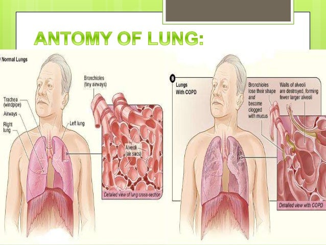 Case study patient with copd