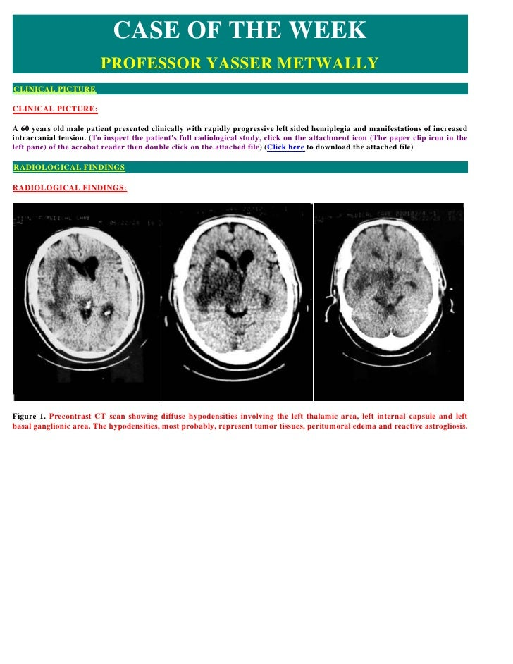 CASE OF THE WEEK                         PROFESSOR YASSER METWALLY CLINICAL PICTURE  CLINICAL PICTURE:  A 60 years old mal...