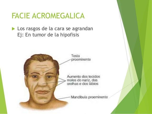 Semiologia Médica - Facies