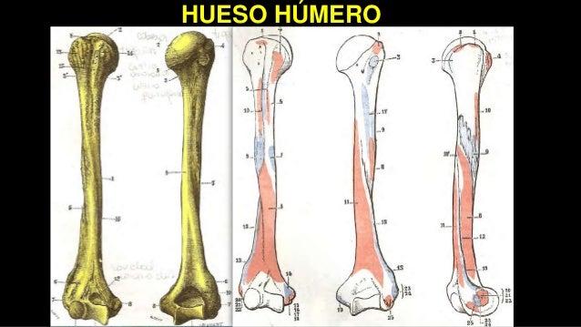 Fractura diafisiaria de tercio medio de Húmero